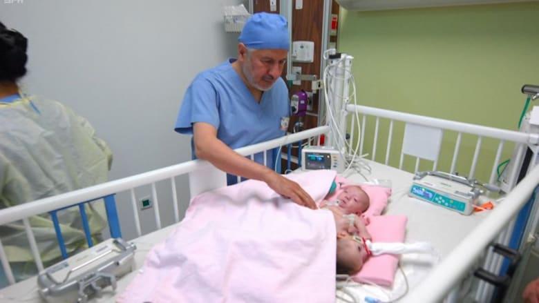 شاهد.. نجاح عملية فصل طفلة فلسطينية عن توأمها الطفيلي بالسعودية