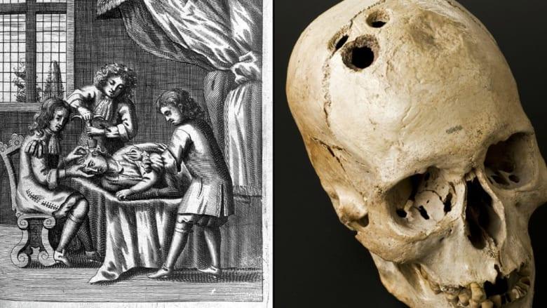 بالصور..أبشع وأقسى الممارسات الطبية عبر التاريخ