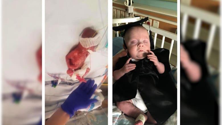 رضيع يكافح 160 يوماً ليعيش رغم ولادته قبل موعده بـ18 اسبوعاً