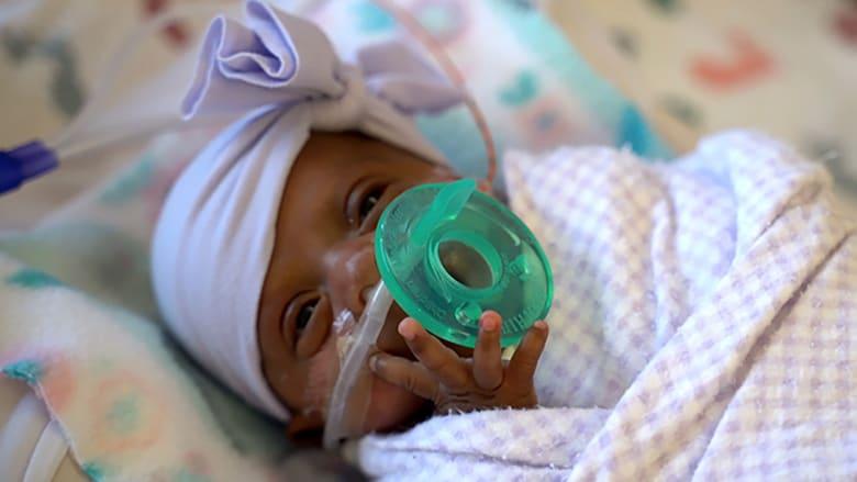 وزنها كان 243 غراما.. أصغر مولودة في العالم تغادر المستشفى