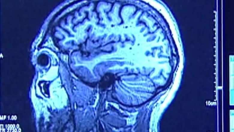 دراسة: مستويات عالية من التوتر يمكن أن تسبب تقلص دماغك