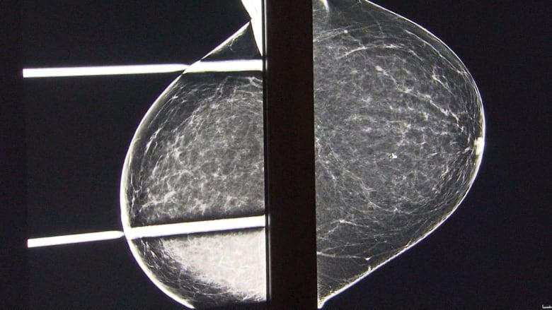 هل يقلل تصغير الثدي من خطر الإصابة بسرطان الثدي؟