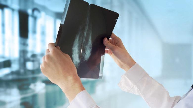 """ذكاء اصطناعي من """"غوغل"""" يتفوق على الأطباء باكتشاف سرطان الثدي"""