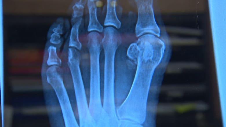 أساليب فعالة لمنع وتخفيف آلام القدم