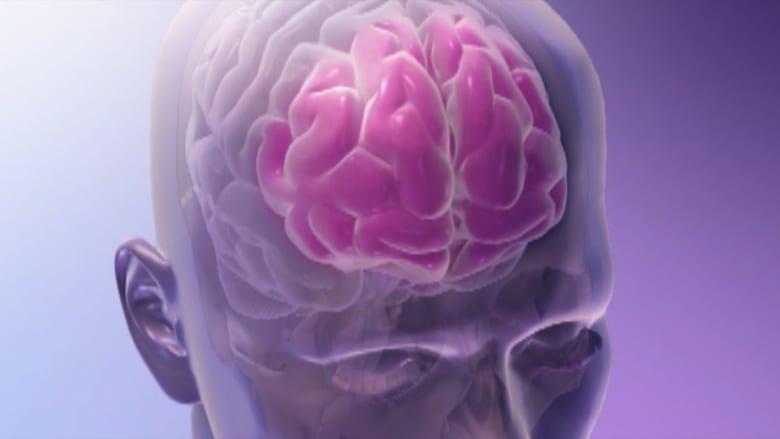 كيف يؤثر السكري على الدماغ؟