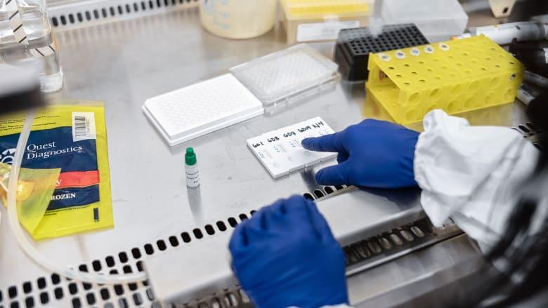 لهذه الأسباب لا يمكن الثقة بفحوصات الأجسام المضادة لفيروس كورونا