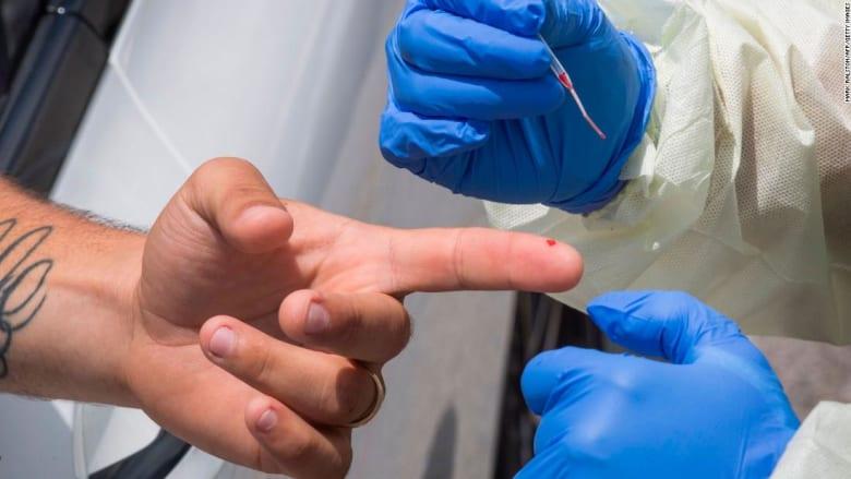 مكتب التحقيقات الفيدرالي يحذر من اختبارات الأجسام المضادة المزيفة لفيروس كورونا