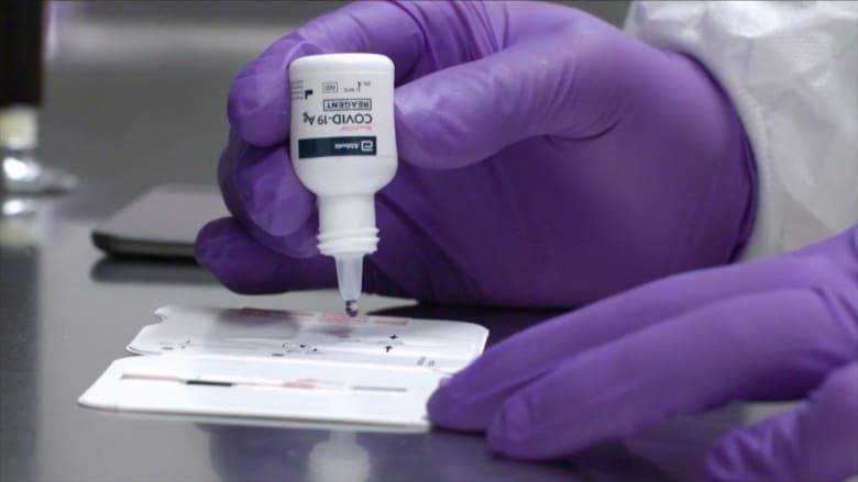 بـ5 دولارات والنتيجة خلال دقائق.. FDA تصرح استخدام فحص جديد لكورونا