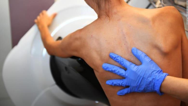 منظمة الصحة العالمية تصدر توصيات للحد من خطر الإصابة بسرطان الثدي