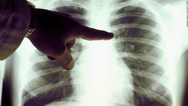 هكذا يمكن تقوية الرئتين بعد تشخيصهما بالسرطان