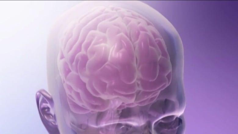 ماذا يحدث أثناء السكتة الدماغية وما هي أنواعها؟