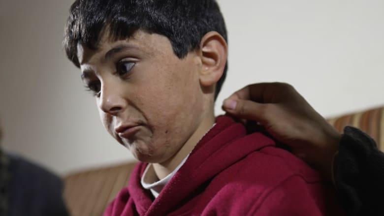 احترق جسمه وقُتل والده وشقيقه الأصغر.. هذه قصة طفل سوري بعمر الحرب السورية
