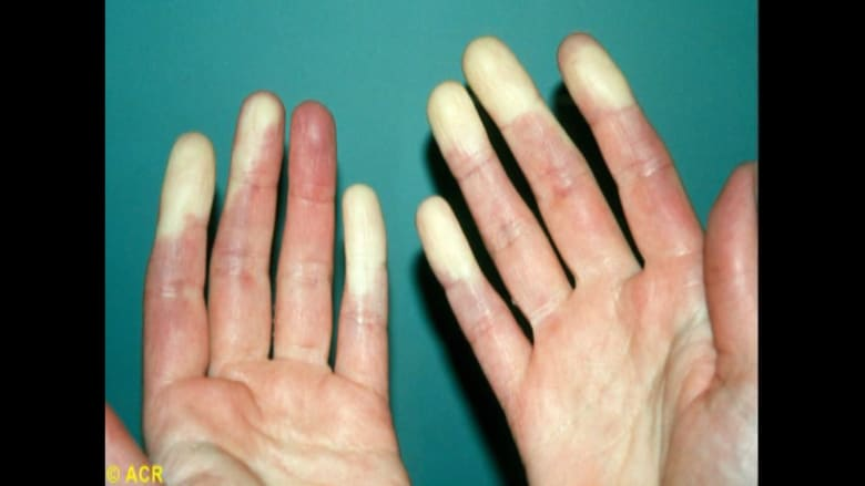 قد يتسبب في تغيير لون يديك وأصابع قدميك.. ما هو مرض رينود الأولي؟