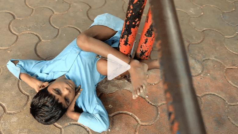 قصة تهز المشاعر لطفل عاجز يقضي يومه مقيدا إلى عامود