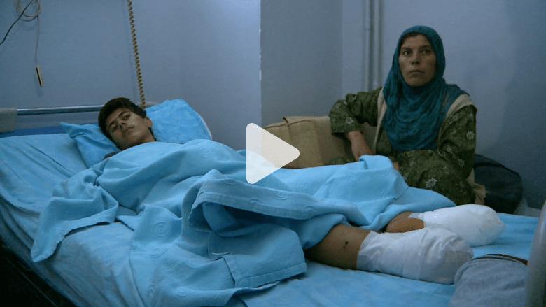 فقد ساقيه ويرغب بالعودة لأرض المعركة في كوباني