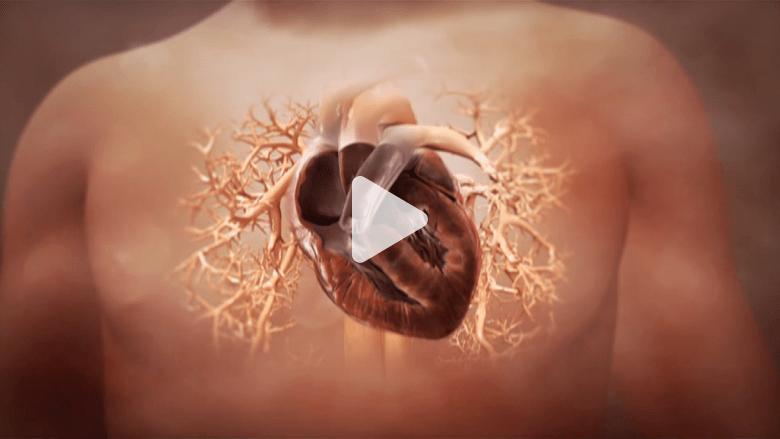 تجربة طبية قد تؤدي لعلاج أضرار النوبة القلبية بالخلايا الجذعية