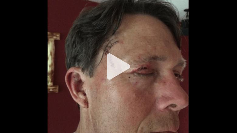 بالفيديو.. ناج من هجوم دب يروي تفاصيل نجاته