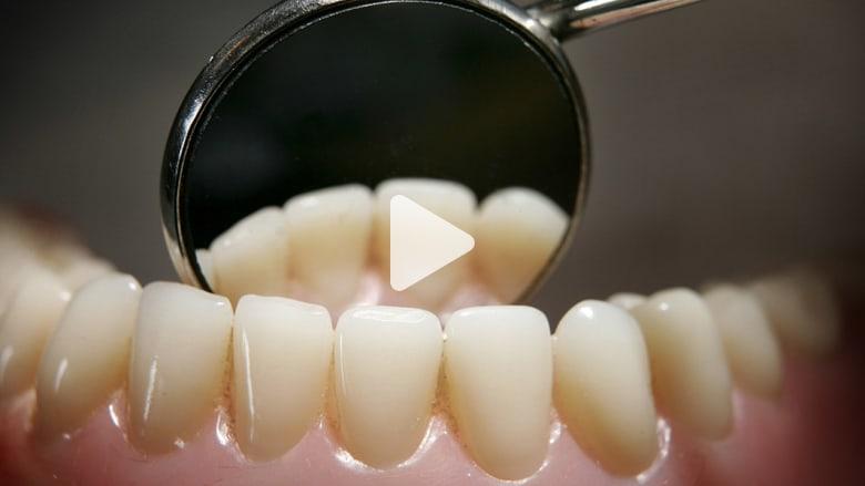 للكبار المحرجين من تقويم أسنانهم.. هل تفضلون ابتسامة بشعة وصحة ضعيفة؟