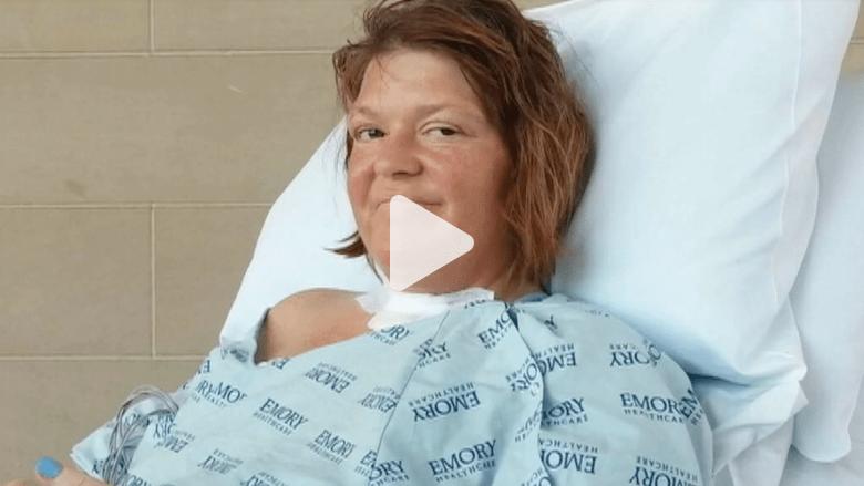 """بكتيريا """"آكلة الجلد"""" تعرض حياة امرأة للخطر"""