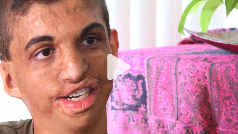 بالفيديو: كيف يعيش يوسف في أمريكا بعد حرقه من قبل مقنعين في بغداد