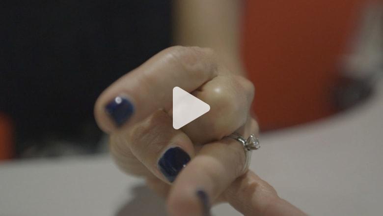 لغز فرقعة الأصابع.. هل تضر فعلا أم هي تحذيرات وهمية؟