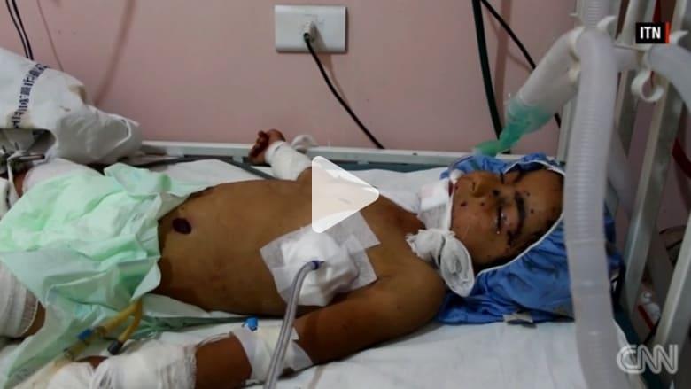 طفلة تلتقط لعبة في شوارع حلب.. وإذ بها قنبلة عنقوديةانفجرت بين يديها