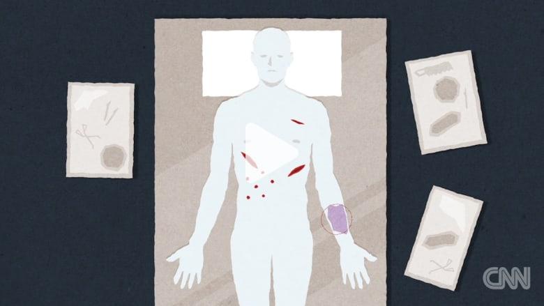 فيديو تفصيلي لما يحدث عندما يقوم الأطباء بتشريح الجثث