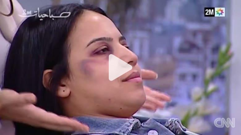 """تعليم التبرج لـ""""تغطية"""" العنف المنزلي يغضب المغاربة"""