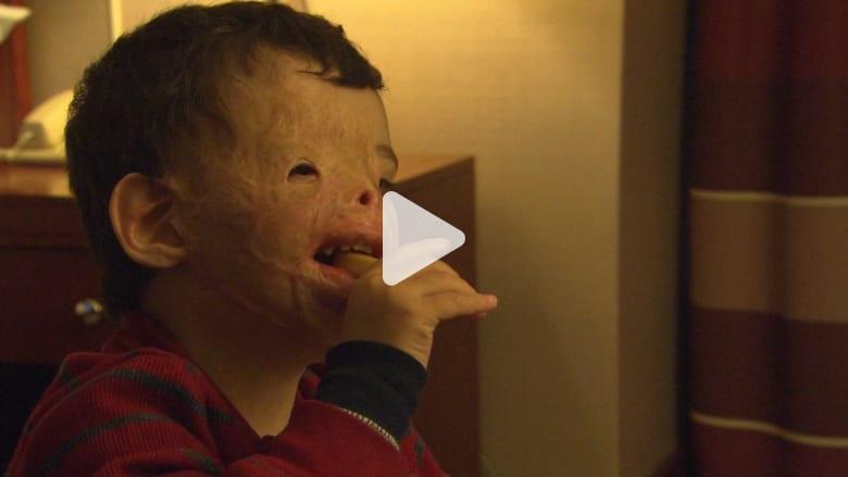 بعد انفصالهم قرابة 4 أشهر.. طفل عراقي مصاب بأمريكا يلتقي بوالديه