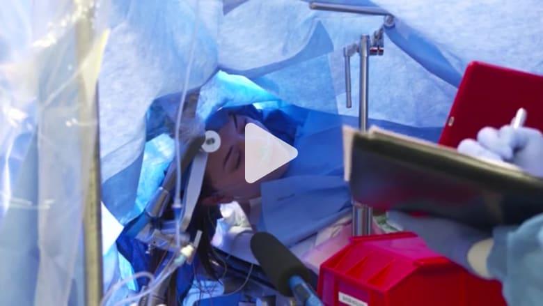 بث مباشر لعملية جراحية في المخ والمريضة مستيقظة