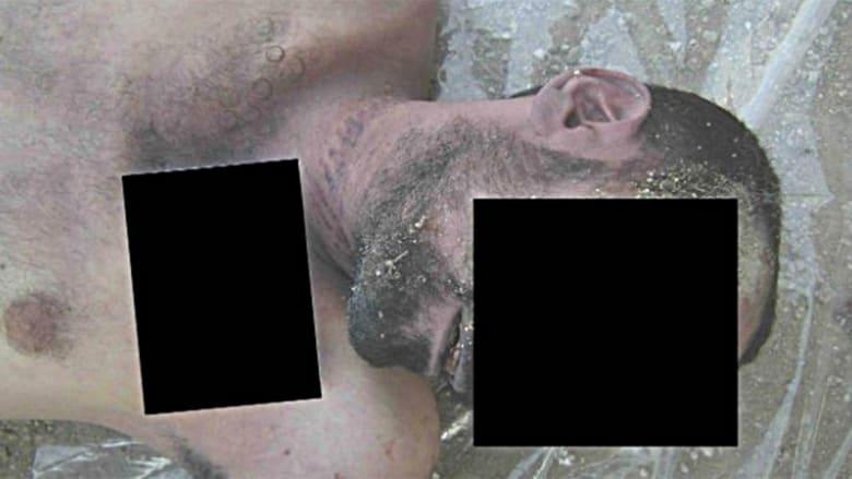 صورة تظهر مزيدا من علامات الخنق.