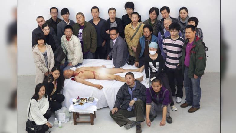 هي يونغتشانغ أزال ضلعاً كاملاً من جسده بنفسه ومن دون تخدير