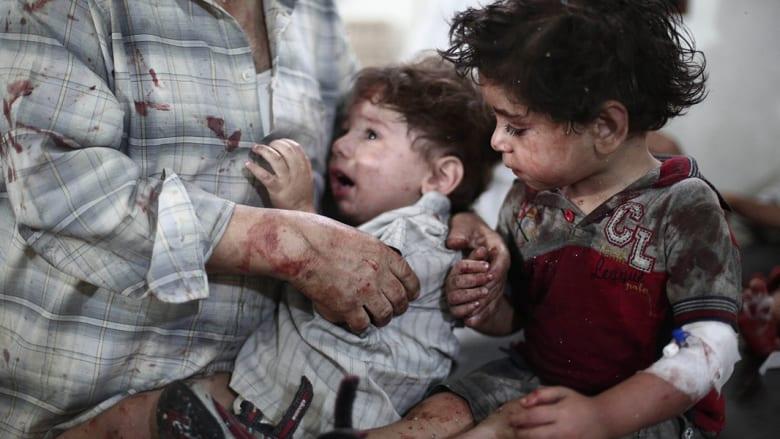 أطفال في مستشفى مؤقت بعد انفجار سيارة مفخخة في دوما بسوريا.