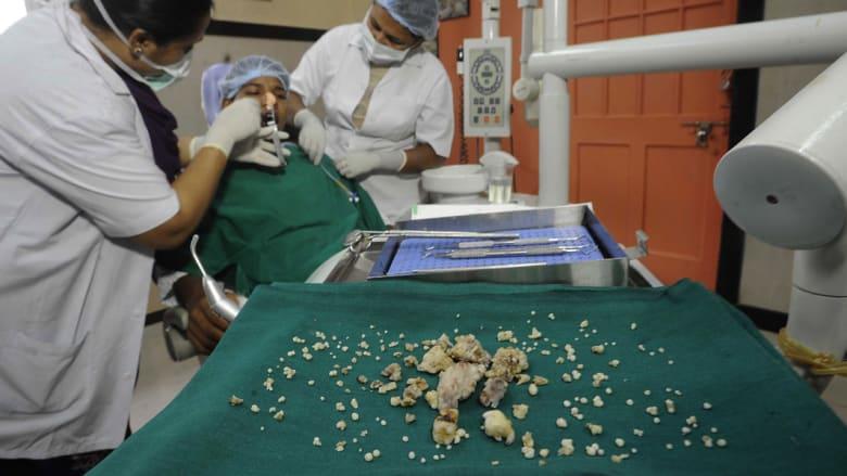 جراحون يقلعون 232 سناً من فم مريض واحد