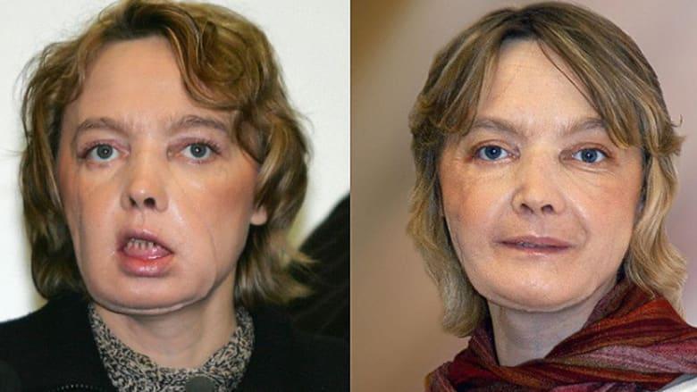 أبرز عمليات زراعة الوجه حتى الآن