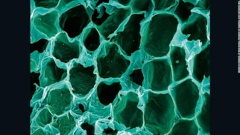 هل تعرف ما هي هذه الخلية؟ جسدك بنظرة مجهرية