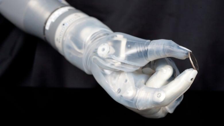 شاهد.. علماء ينجحون بتنمية ذراع قرد بالمختبرات