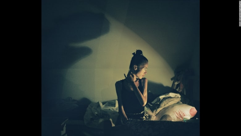 صور للحياة داخل أحد مركز تأهيل متخصص بمساعدة المصابين بمرض فقدان الشهية