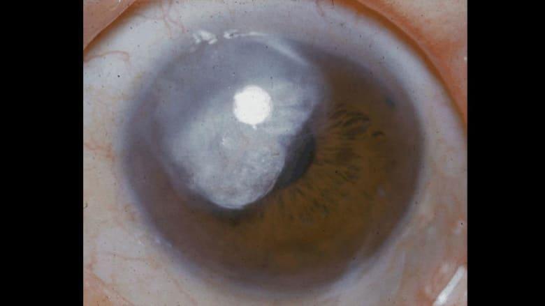 هذه المشاكل الصحية يمكن معرفتها من نظرة واحدة في عينيك!