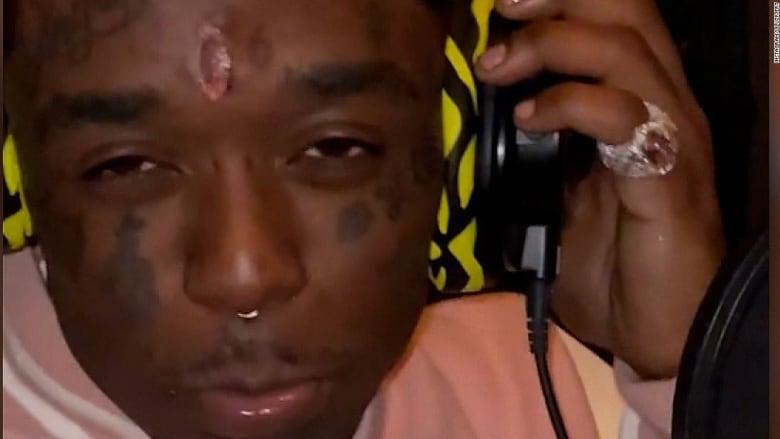 ثمنها 24 مليون دولار.. مغني راب يزرع ألماسة وردية في وجهه