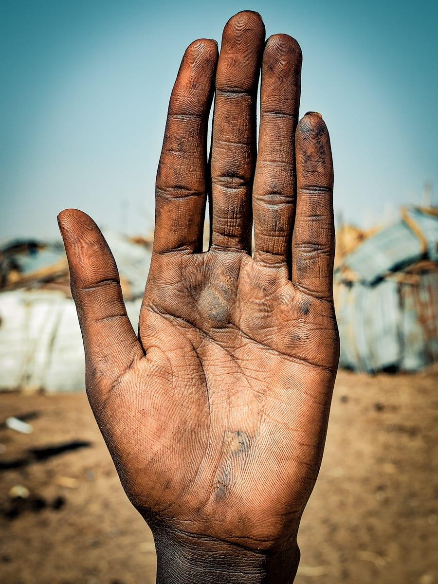 قصص أشخاص من كف يدهم