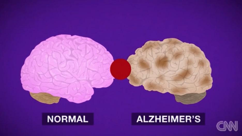 بالفيديو.. هذا ما يفعله مرض الزهايمر بالدماغ