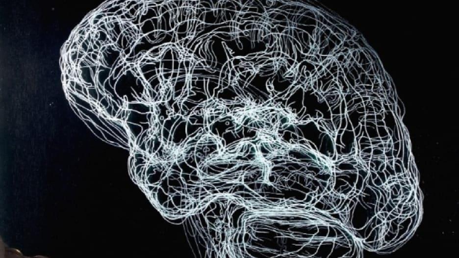 شاهد كيف تتسبب الصدمة النفسية بتغيير بنية الدماغ