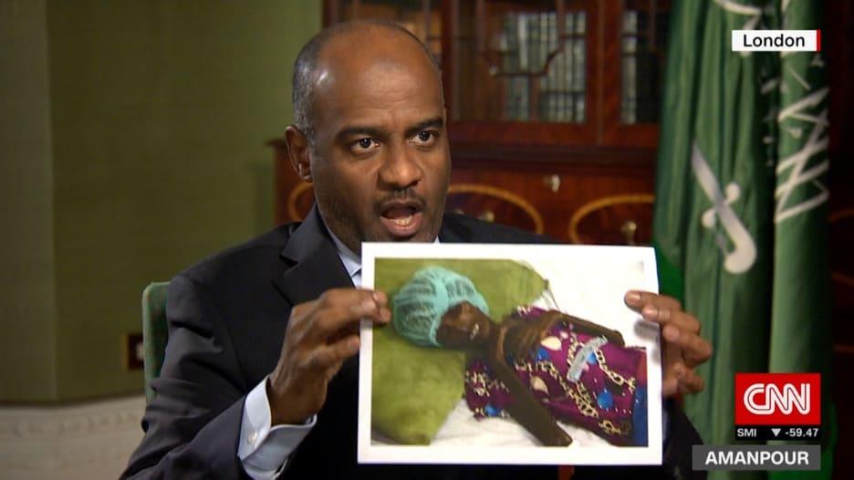 """عسيري يرد لـCNN على صورة من """"مجاعة اليمن"""""""