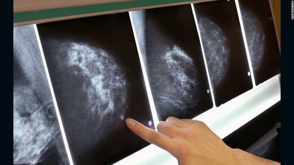 تعرف إلى أهم الحقائق حول سرطان الثدي