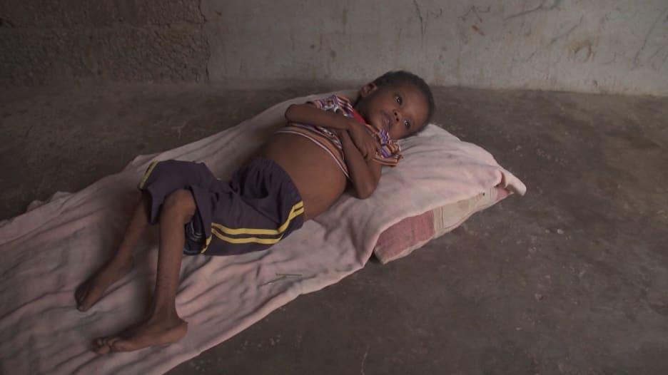 طفل يعبر عن جوعه وألمه لوالدته وما بيدها حيلة.. هذا هو اليمن