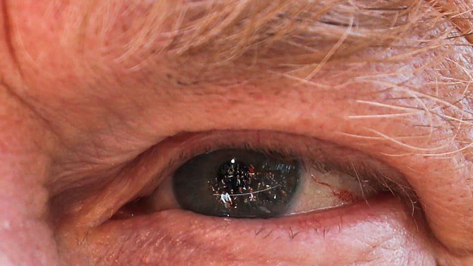 لماذا انتشرت هذه الصورة لعين ترامب بشكل كبير؟