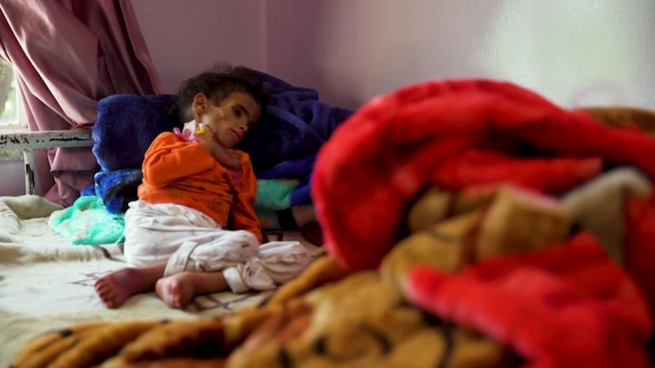 اليمن على شفا مجاعة موضحة.. كيف يتلاعب الحوثيون بالمساعدات؟