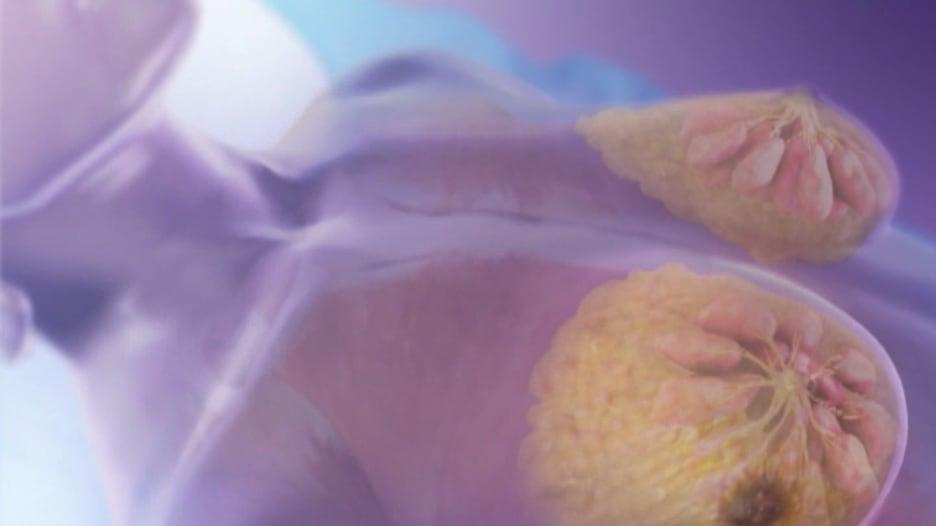 سرطان الثدي لدى النساء والرجال..أهم ما يجب أن تعرفه في دقيقة