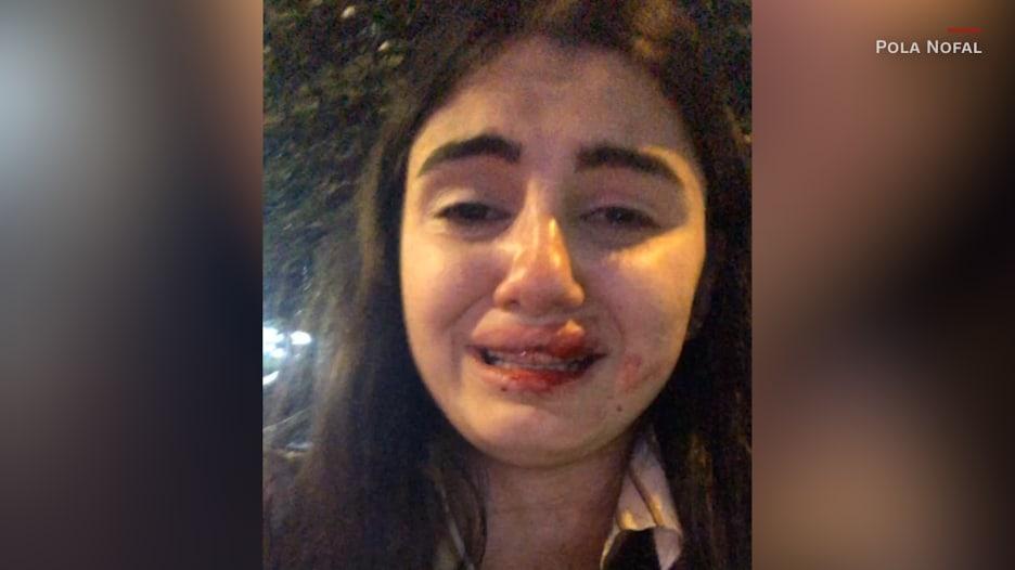 """بعد فيديو """"الاعتداء عليها"""".. بولا نوفل توضح لـCNN ما حصل"""